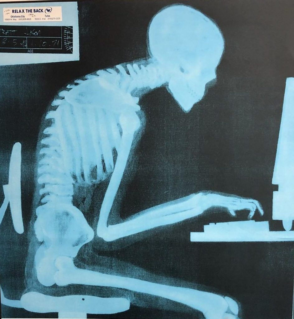 4 out of 5 people will suffer back pain in their lives.